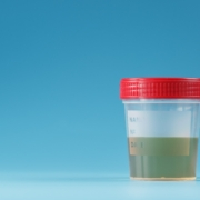 6 Things Your Urine Can Tell You